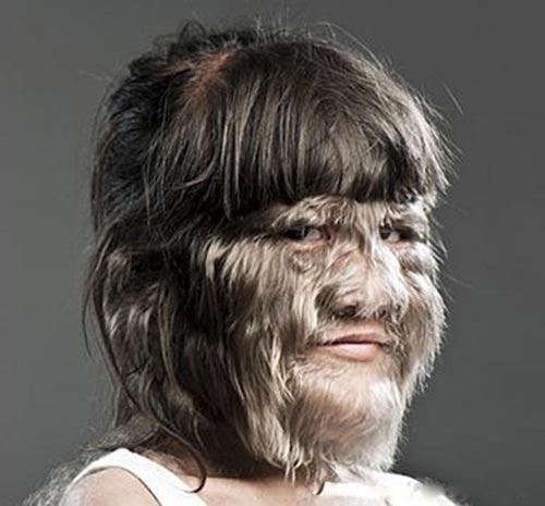 Pessoas com hipertricose lanuginosa congênita ficam completamente cobertas por um longa lanugem (cabelo) de até 25 centímetros