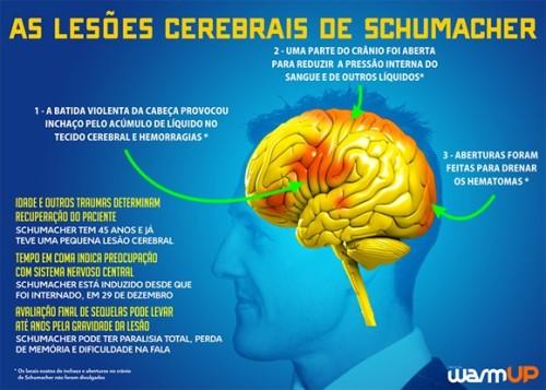 As lesões cerebrais de Schumacher