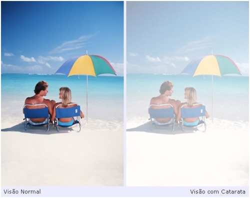 Comparação entre Visão Normal e visão com Cataratas