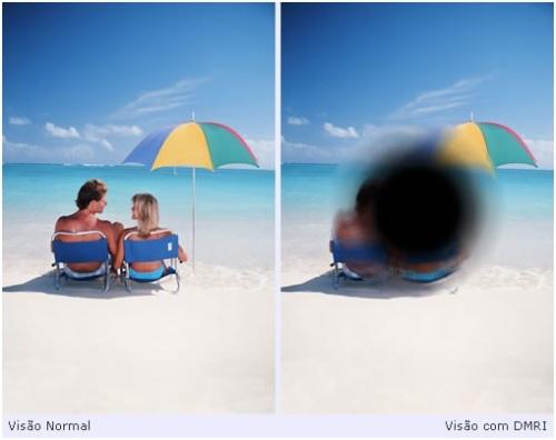 Comparação entre Visão Normal e Visão com DMRI