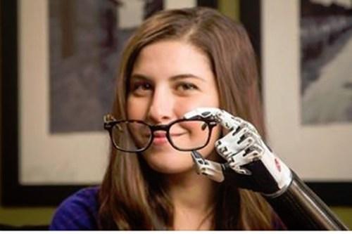 Angel Giuffria contou que foi considerada a pessoa mais jovem do mundo a usar um braço biônico