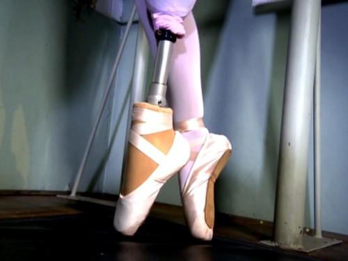 Bailarina dança com prótese de ponta de pé desenvolvida em Campinas