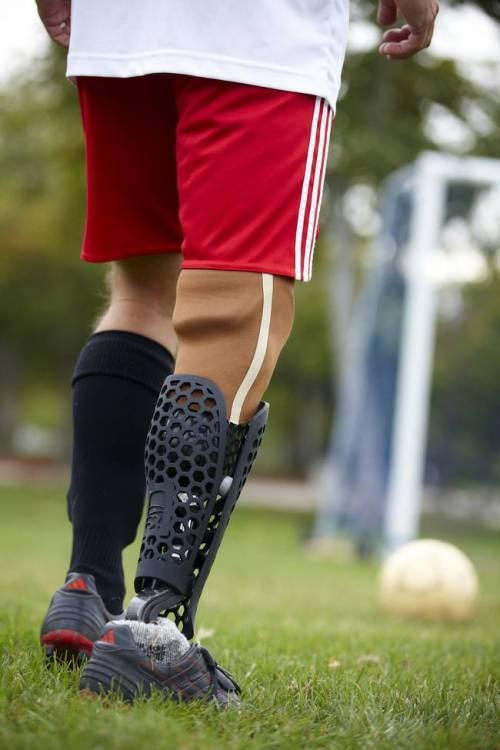 perna-protese-10