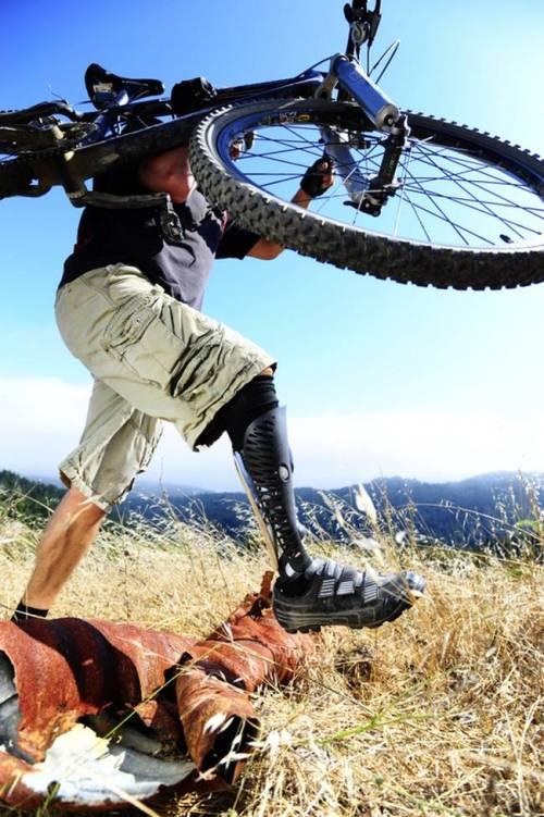 perna-protese-14