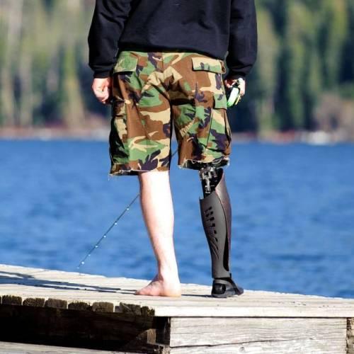 perna-protese-8