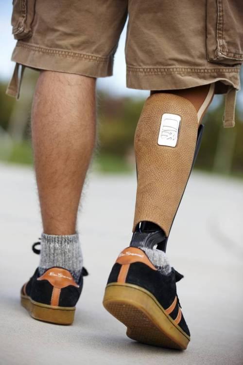 perna-protese-9